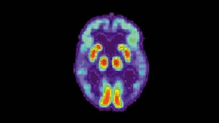 """以""""阿尔兹海默症""""为案例,AI+慢病管理该怎么做?"""